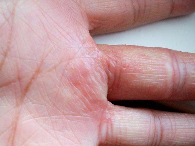 Eczema Under Wedding Ring Gallery
